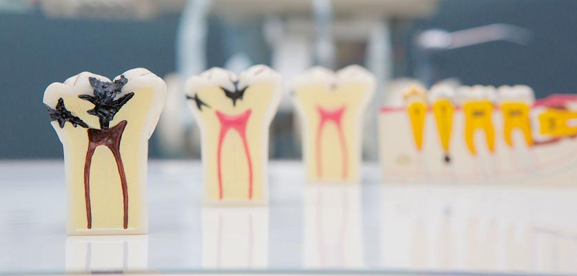 kanal diş tedavi